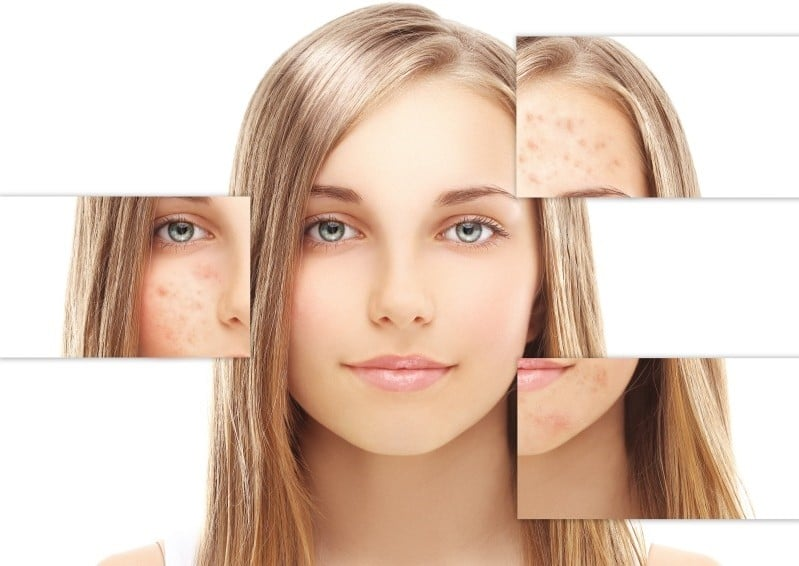 Dicas de Como Acabar com a Acne