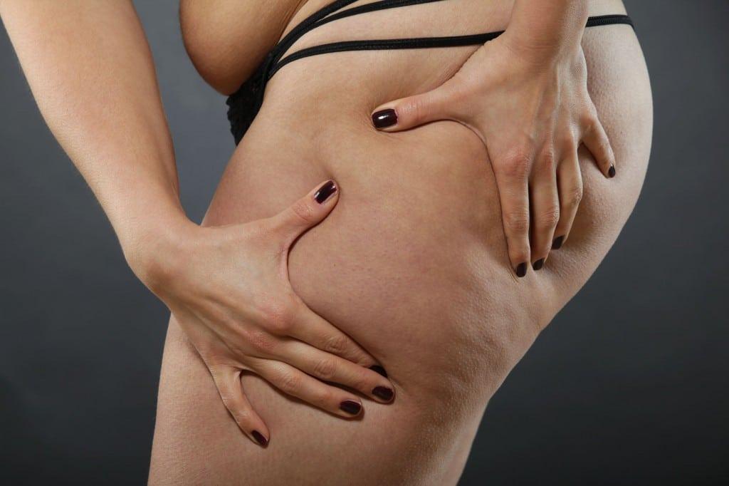 Como Fazer Para Eliminar a Celulite Naturalmente!