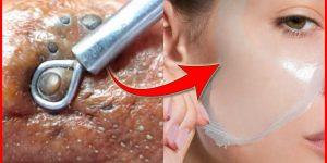 como eliminar cravos e espinhas