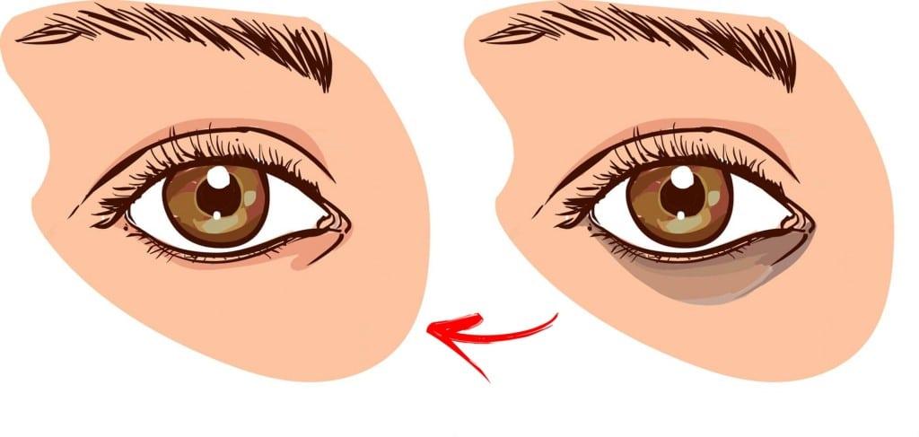 como eliminar os círculos escuros sob os olhos