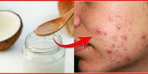 como tratar a acne de forma simples
