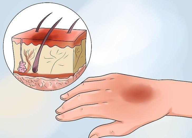 como tratar queimadura