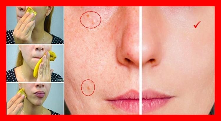 como usar a casca de banana para eliminar a acne
