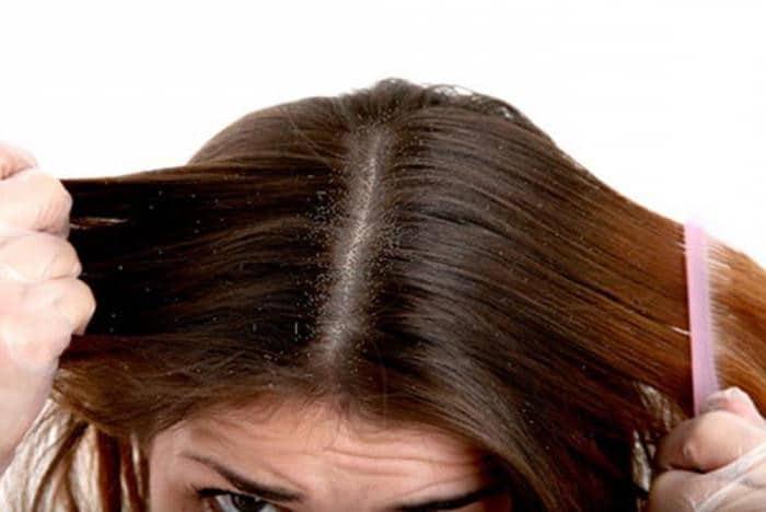 couro cabeludo seco
