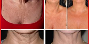 dicas caseiras para remover rugas do peito e pescoço