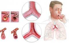 Os 11 Remédios Caseiros Para Tratar Bronquite
