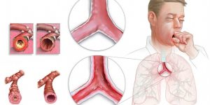 os 11 remédios caseiros para tratar bronquite 3