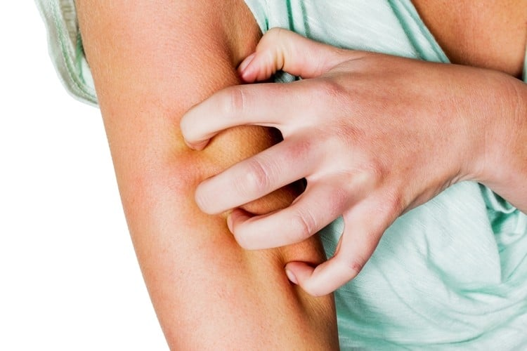 Os 10 Remédios Caseiros Para Tratar Coceira de Pele