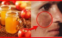 Os 10 Remédios Caseiros Para Remover Hiperpigmentação