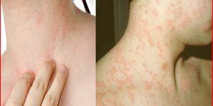 tratamentos para alergia alimentar