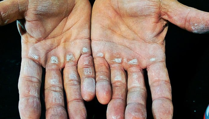 Remédios Caseiros para Remover Calos