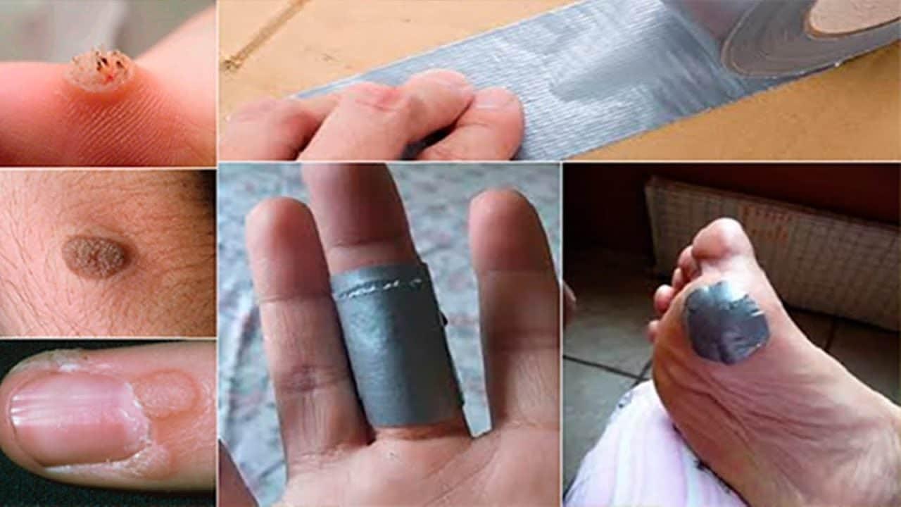 remedio caseiro para acabar com as verrugas