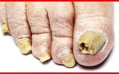 Os 10 Remédios Caseiro ParaTratar Micose nas Unhas