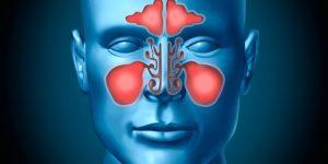 Remédios Para Tratar a Sinusite