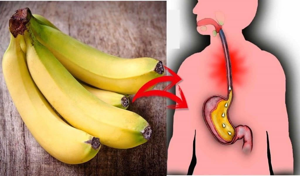 Os 17 Alimentos que Ajudam a Tratar o Refluxo