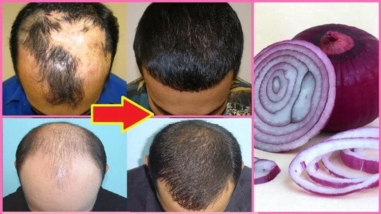 tratar a queda de cabelo