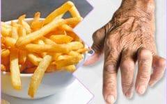 Os 9 Alimentos que Você Deve Evitar se Tiver Artrite!