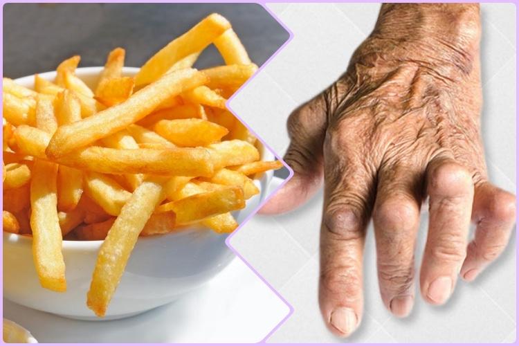 Alimentos Que Você Deve Evitar se Tiver Artrite