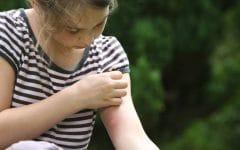 Remédios Naturais Para Acalmar Alergias por Picadas!