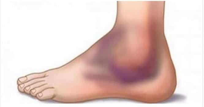 Como curar entorse de tornozelo