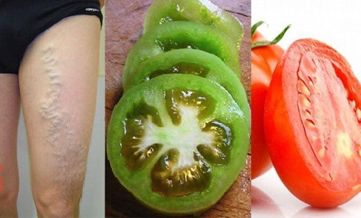 Curar Varizes com Tomate