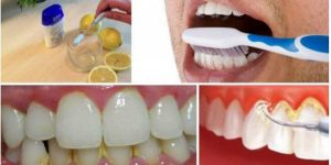 como eliminar o tártaro, placas e sangramento do dentes