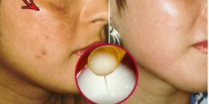 remover as machas rugas e acne